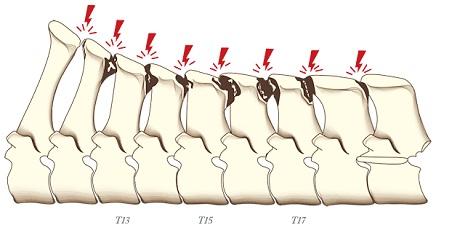 """Боли в спине: """"целующиеся позвонки"""" - фото -позвонки, главная Здоровье лошади , конный журнал EquiLIfe"""